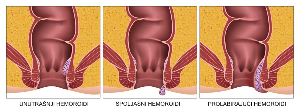 Vrste hemoroida