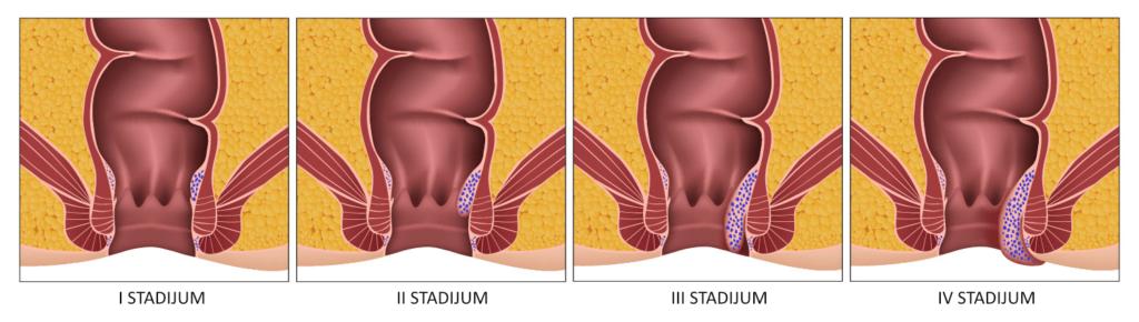 Stadijumi hemoroida